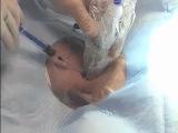 Пункция внутренней яремной вены,с дальнейшей катетеризацией верхней полой вены